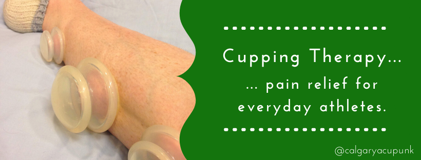 cupping therapy